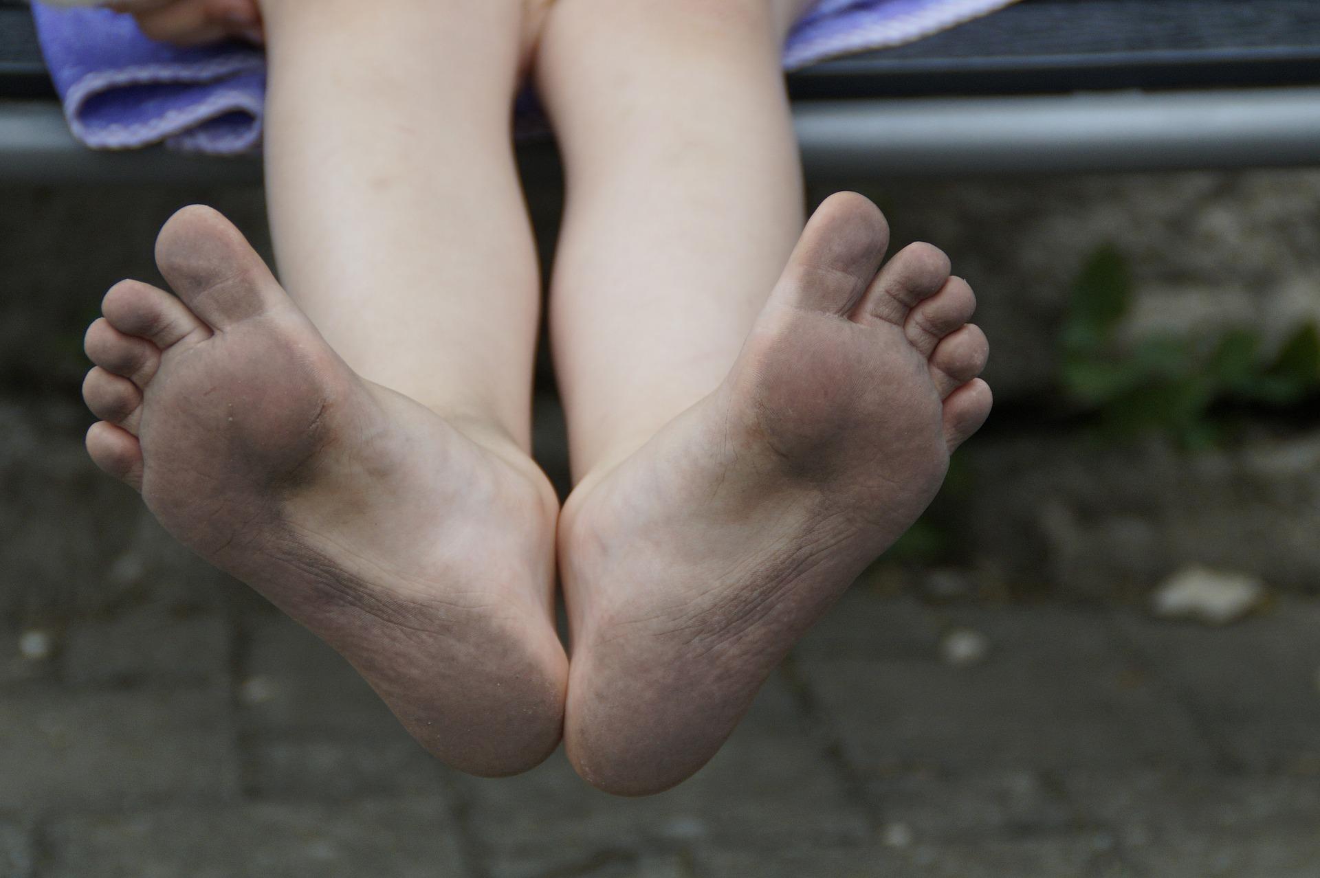 Brennende Fußsohlen: Die besten Tipps, Tricks & Hausmittel gegen schmerzende Füße